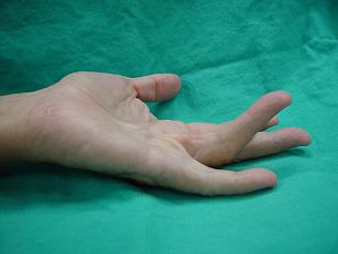 Dupuytren's contracture, stage 2, angle bigger than 45 degree
