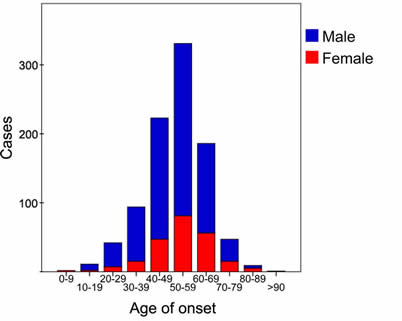 Age of onset of Dupuytren's Disease for males and females