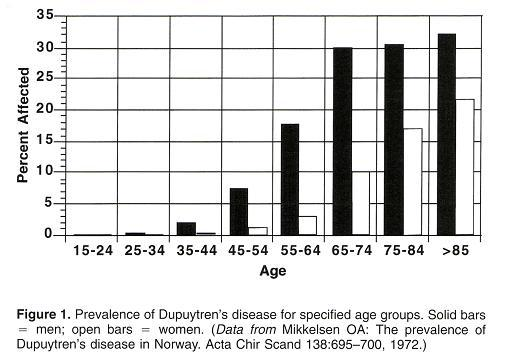 Prevalence of Dupuytren's contracture for different age groups.