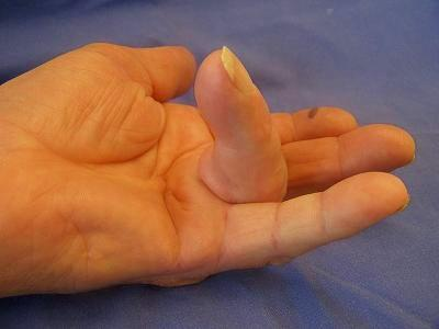 Dupuytren's contracture in very progressed stage:  the ring finger cannot be stretched anymore. In medical language this is called an extension deficit.