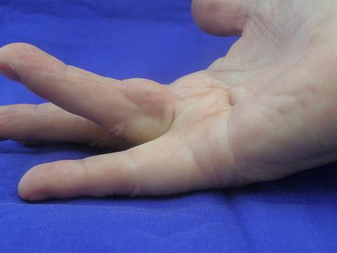 Finger with Dupuytren's contracture before needle aponeurotomy (NA)
