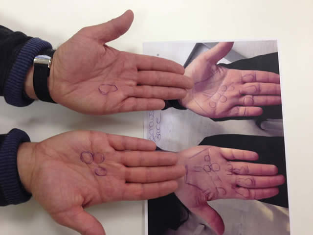 Vor der bestrahlung wird die Hand untersucht und Knoten und Stränge werden auf der Haut markiert.