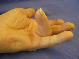 Dupuytren's contracture (Dupuytrens) with 100 deg, stage 3
