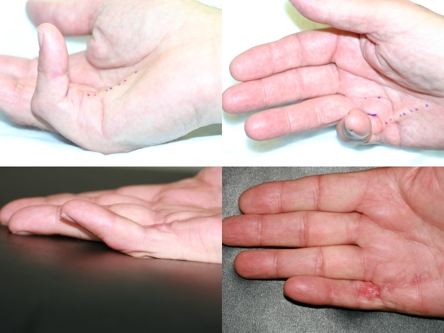 Treatment of Dupuytren's contracture in stage 4 with needle aponeurotomy (NA, PNF).