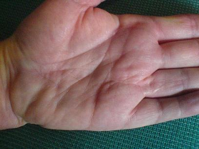 Palm three years after hand surgery of Dupuytren's contracture.  Straight finger, little scarring.