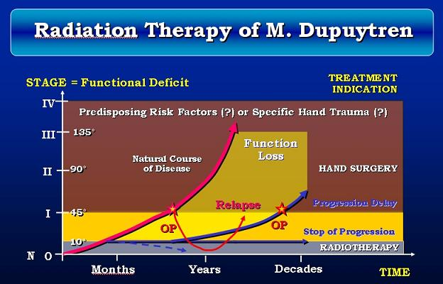 Radiation Therapy Of Morbus Dupuytren And Ledderhose Disease